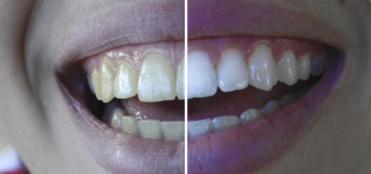 how to whiten teeth in photoshp tutorial
